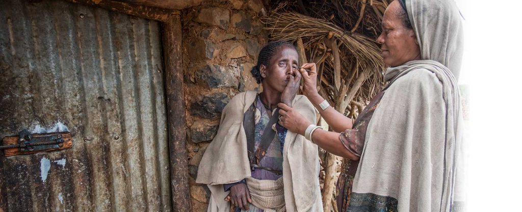 Tsehainesh Hailu demonstrates how she pulls out her sister's Dinknesh eyelashes using tweezers